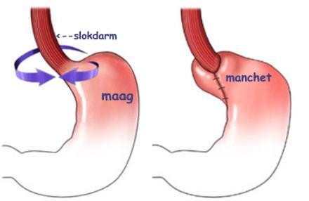 operatie maag